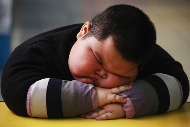 Tìm hiểu về bệnh béo phì ở trẻ em.